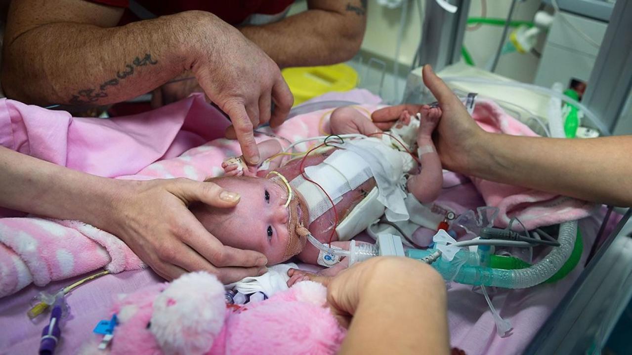 Bé gái mắc hội chứng 'tim ngoài lồng ngực' chỉ có 10% sống sót, bố mẹ em quyết định làm việc này và điều kì diệu xảy ra