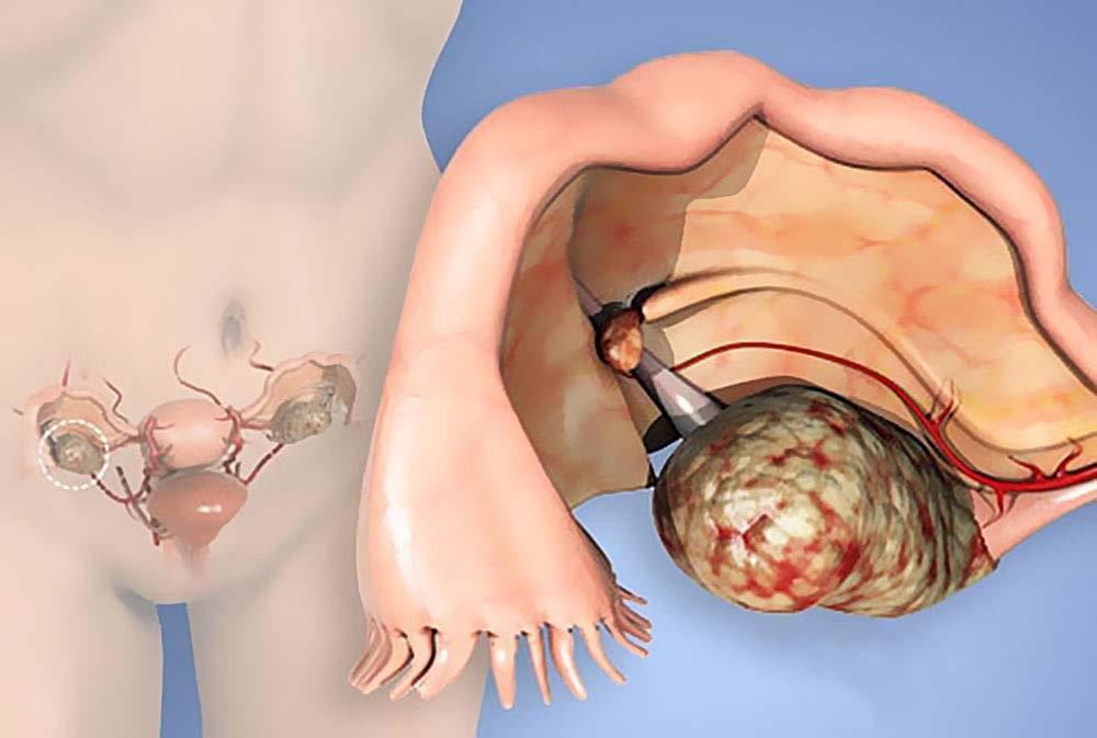 Những căn bệnh ở buồng trứng dễ gây vô sinh, hiếm muộn mà phái nữ cần nắm rõ