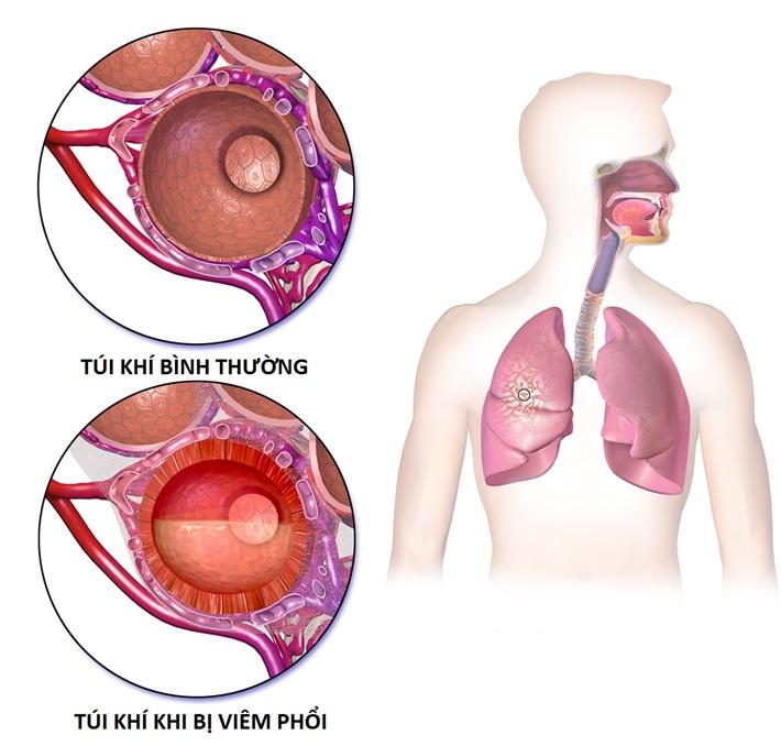 Coi chừng trẻ bị viêm phổi…