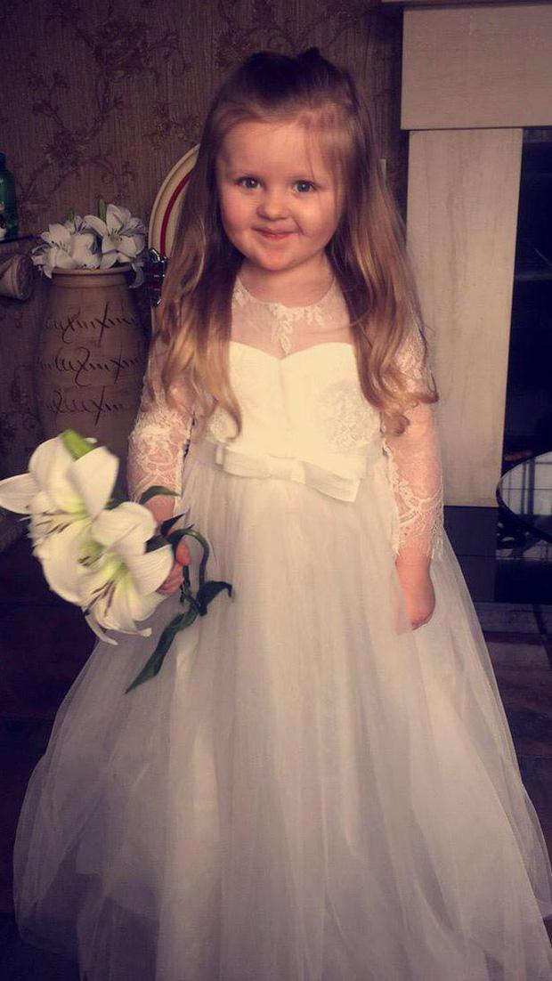 Cô bé 3 tuổi bị nhiễm trùng tai, thậm chí còn suýt mất đi tai trái chỉ vì đôi khuyên tai giá rẻ