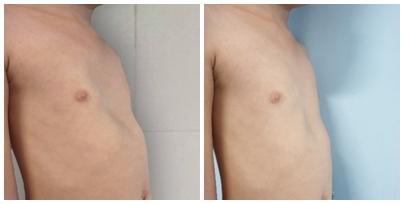 Chớ chủ quan với vết lõm trên ngực trẻ vì đó là dấu hiệu của căn bệnh nguy hiểm