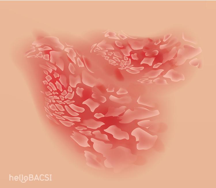 Bệnh vảy nến là gì và cách điều trị thế nào?