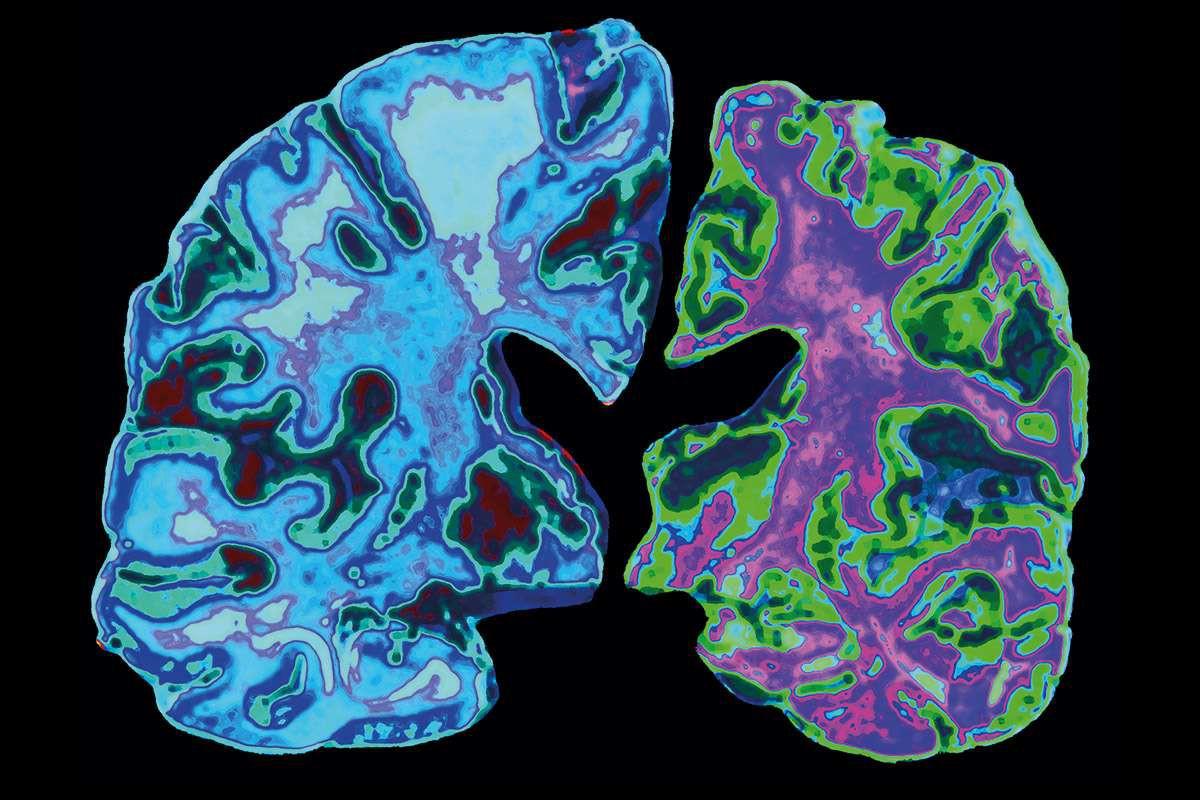 Giới trẻ tăng nguy cơ mắc bệnh Alzheimer chỉ vì 6 thói quen hầu như ai cũng mắc phải