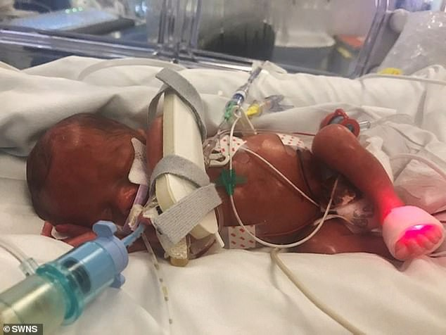 Chuyển dạ ở tuần 27 khi đang đi vệ sinh, bà mẹ trẻ vẫn sinh con an toàn chỉ nhờ một cuộc điện thoại
