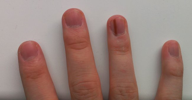 Nhìn dấu hiệu bất thường trên móng tay cũng có thể biết được bạn đang gặp phải những vấn đề sức khỏe gì