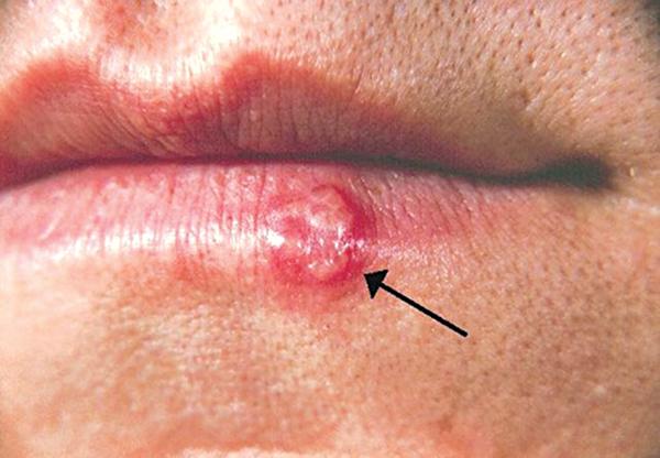 Virus herpes - Sự dịu dàng đáng sợ