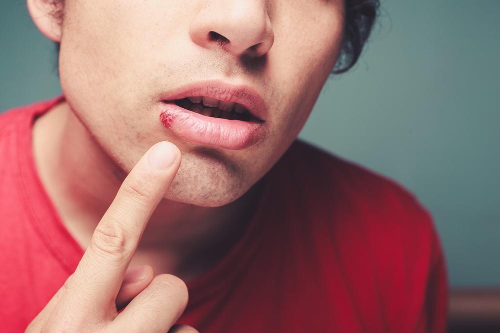 Chăm dưỡng môi nhưng đôi môi vẫn khô nứt, bong tróc thì nguyên nhân có thể là do một vài vấn đề sau