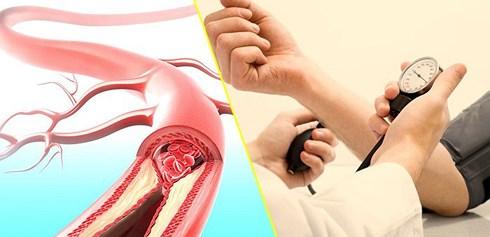 6 việc làm cần thay đổi để sống chung với tăng huyết áp