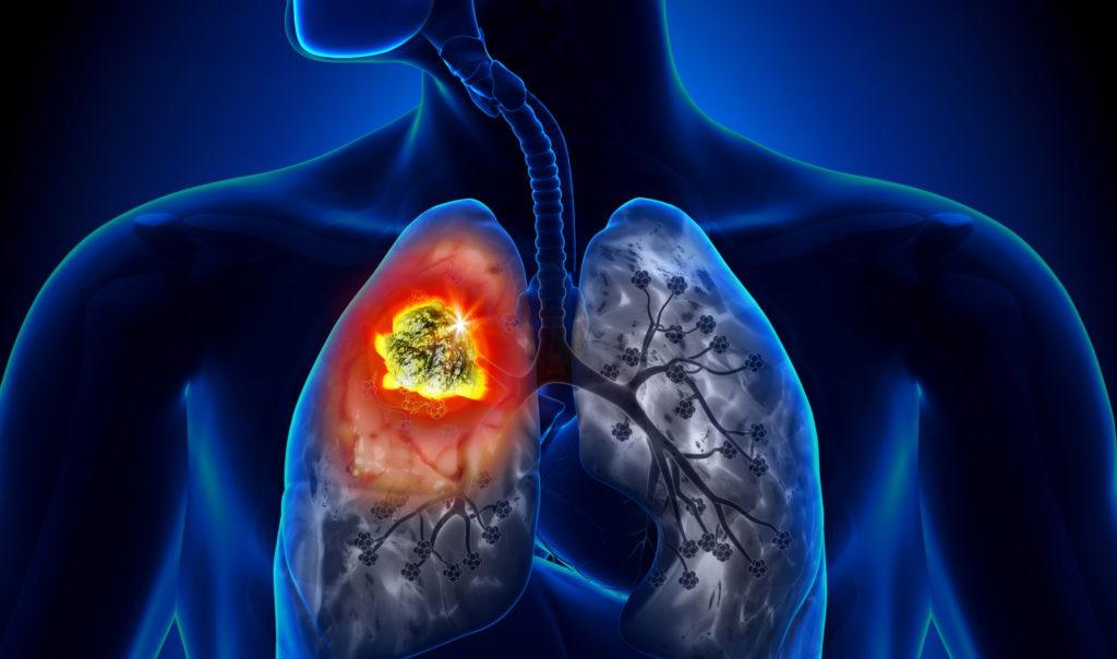 Cảnh báo: đây là những loại ung thư có tính di truyền qua nhiều đời mà bạn nên nắm rõ