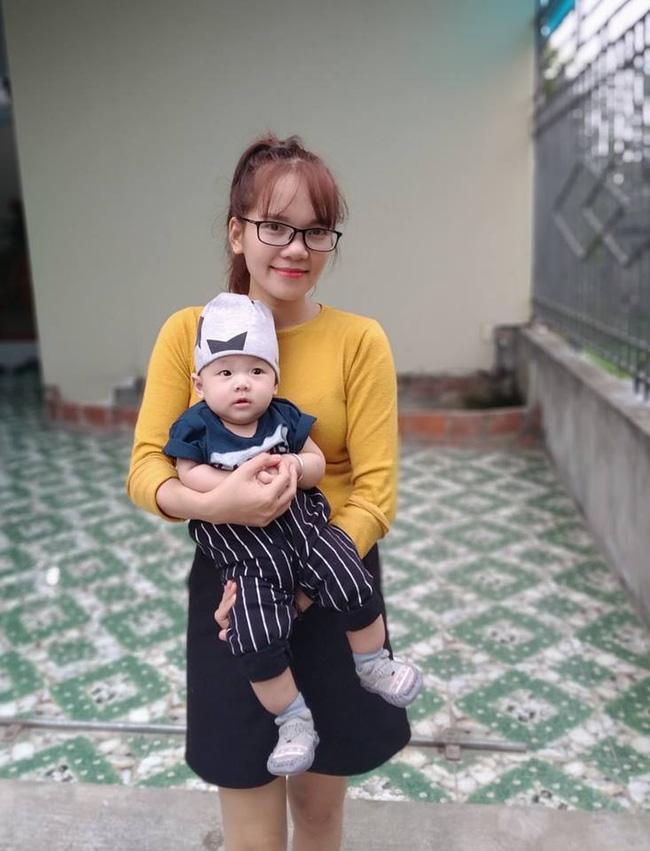 4 tháng sau tiêm phòng, mẹ tá hỏa nhìn thấy hạch mưng mủ, phải đưa con đi phẫu thuật gấp và những kinh nghiệm sâu sắc gửi đến các mẹ khác