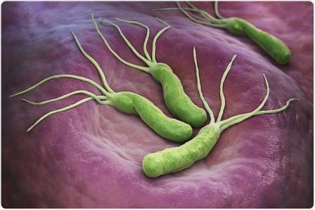 Nhiều bệnh nguy hiểm có nguyên nhân từ mất cân bằng vi khuẩn đường ruột
