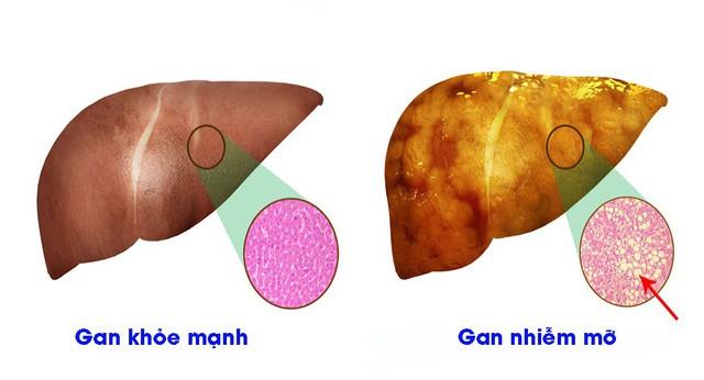 Gan nhiễm mỡ - con đường dẫn tới ung thư: BS mách món ăn trị gan nhiễm mỡ hiệu quả bất ngờ
