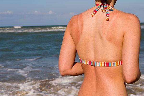 Bị cháy nắng có thể khiến da lão hóa nhanh: Muốn giữ da khỏe đẹp, chị em nên nghe lời khuyên này