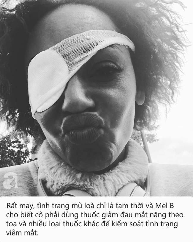 Đây là căn bệnh do virus herpes gây ra khiến cựu thành viên nhóm nhạc Spice Girl suýt mù lòa