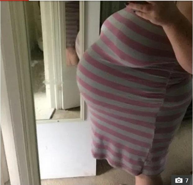 Đang nằm trên bàn mổ mà cứ thấy y tá nhao nhao tra cứu em bé sơ sinh nặng cân nhất, đến lúc biết số cân của con, bà mẹ bị sốc nặng