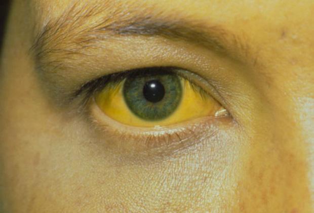 Nếu tế bào ung thư xuất hiện, sẽ có 4 hiện tượng hiện rõ trên làn da ngầm cảnh báo sớm mà bạn nên chú ý