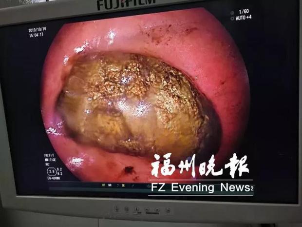 Ăn 1 loại trái cây khi bụng đói, người phụ nữ bị sỏi to như quả trứng ngỗng 'mọc' trong bụng