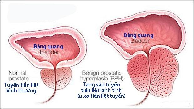 Các bệnh thường gặp ở tuyến tiền liệt